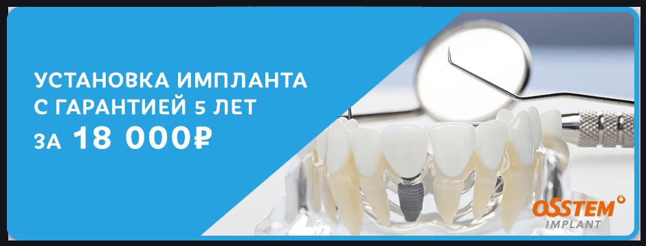 Импланты с гарантией на 5 лет за 18 000 рублей!