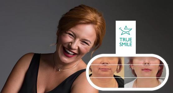 эланеры True Smile