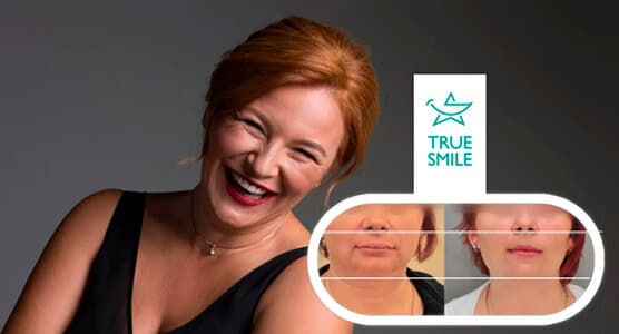 Элайнеры True Smile